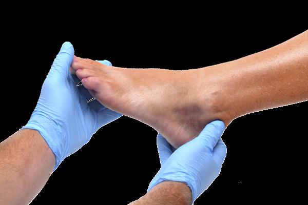 רגל אישה בידיי רופט